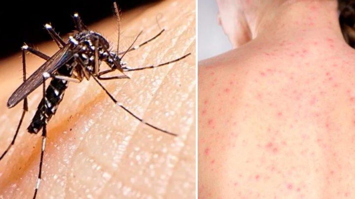 En alerta sanitariaConfirman la muerte de un hombre por dengue y la de una mujer por sarampión en dos hospitales porteños